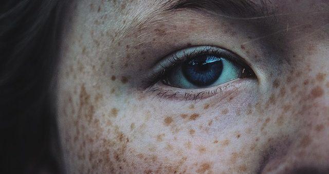 ¿Conoces tus manchas en la piel?